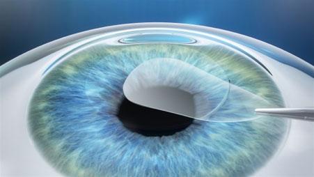 Eye Anatomy LASIK